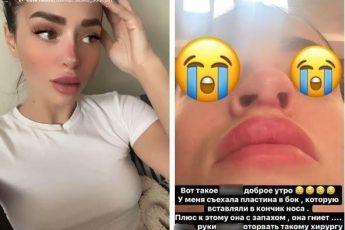 Анастасия Балинская - нос провалился до и после пластики