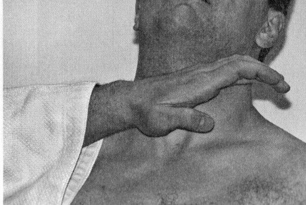 Сонная артерия удар